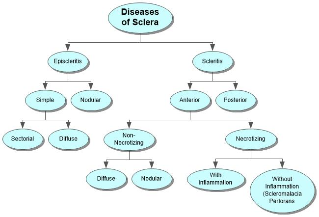 Diseases of Sclera Concept Map