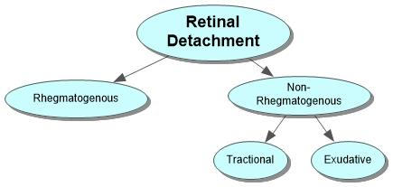 Retinal Detachment Concept Map