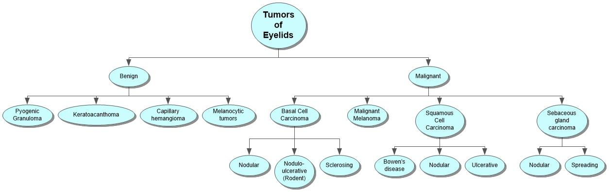 Tumors of Eyelids Concept Map