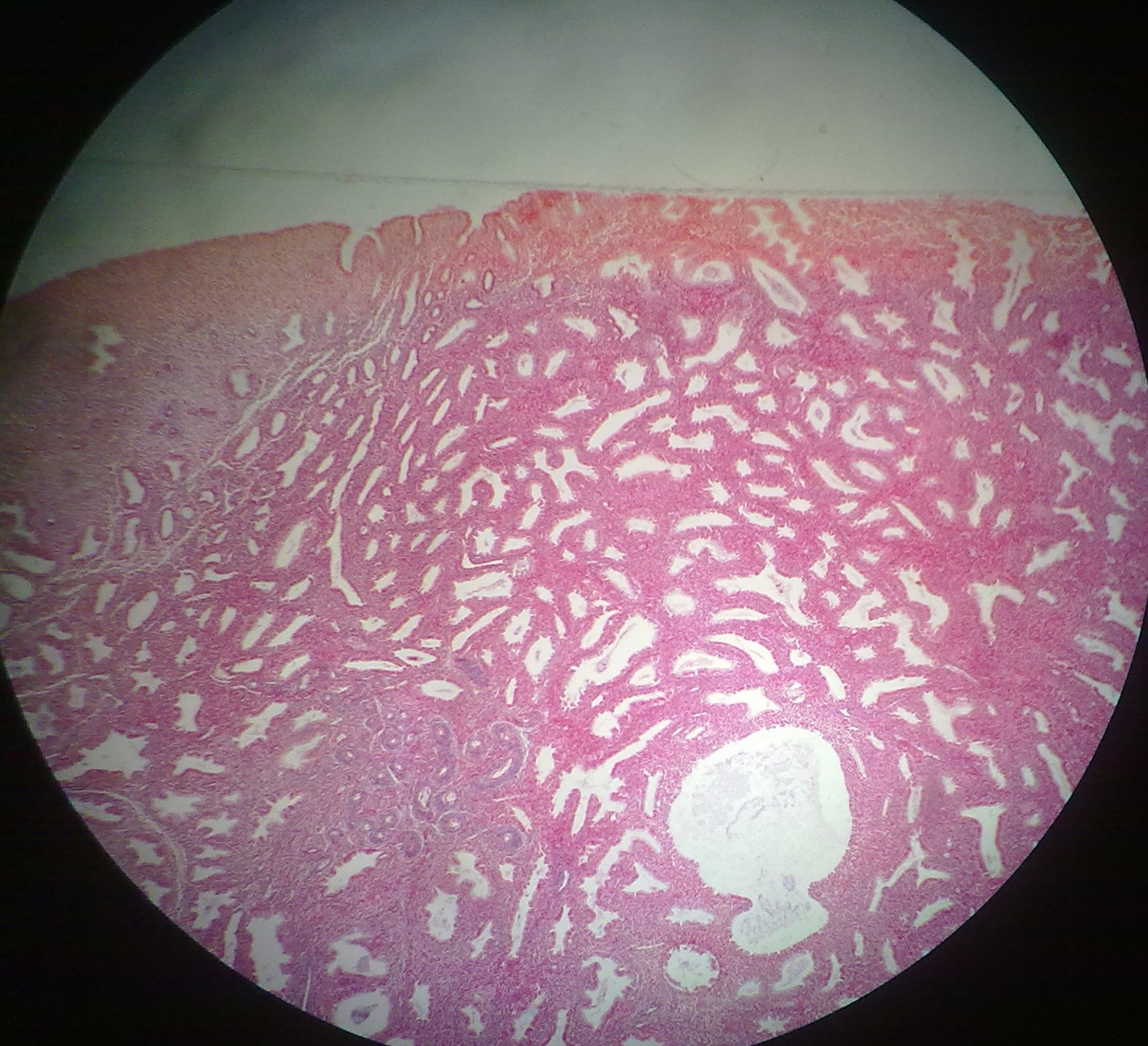 Uterus Histology Functional Layer Three layers  mucosaUterus Histology Functional Layer