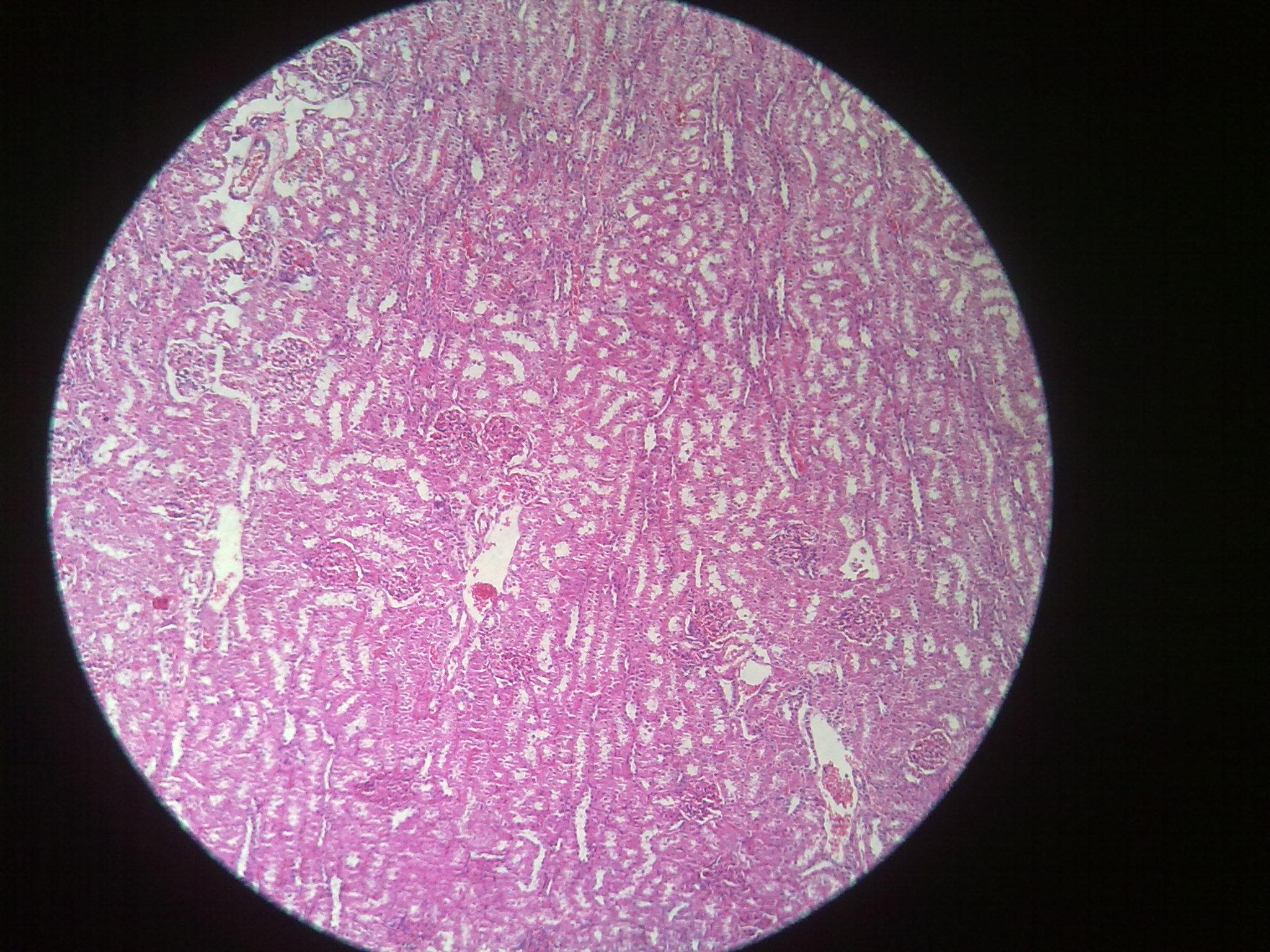 Kidney Histology – howMed
