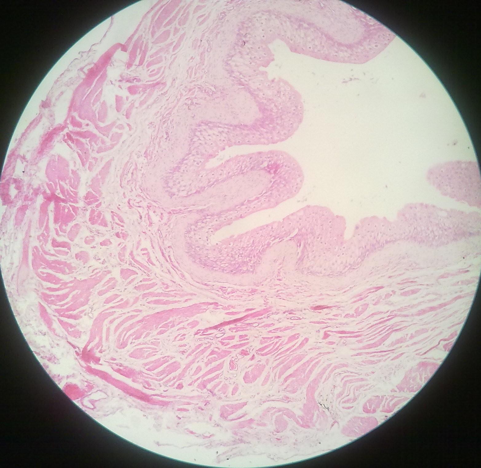 Ureter and Urinary Bladder – howMed