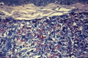 ziel neelson staining