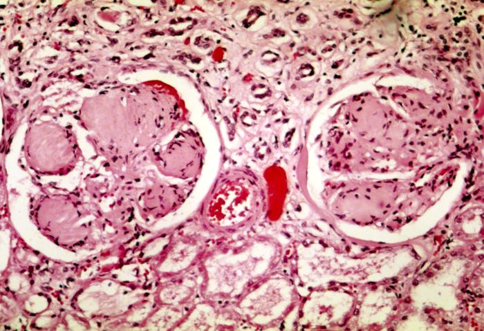 glomerulosclerosis characteristic of diabetes mellitus