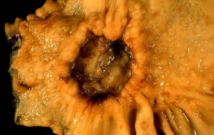 Adenocarcinoma of Stomach