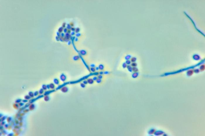 Conidiophores and conidia of Sporothrix schenckii