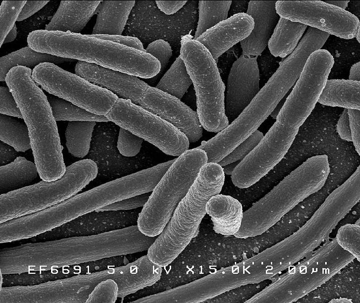 Escherichia coli, scanning electron micrograph