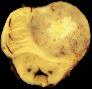 Gemistocytic astrocytoma