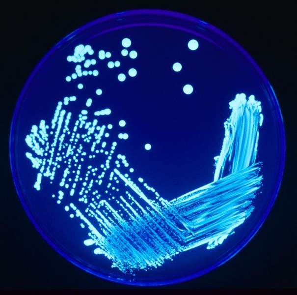 Legionella species growing on agar plate illuminated using ultraviolet light to increase contrast.