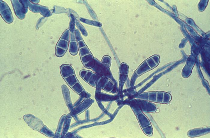 Macroconidia of Epidermophyton floccosum and filamentous hyphae