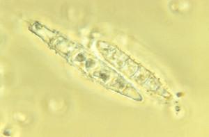 Microsporum persicolor macroconidia