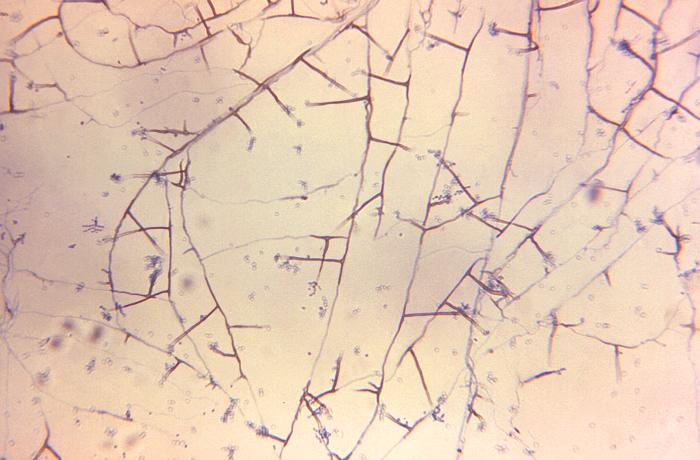 Mould composed of branched septate hyphae