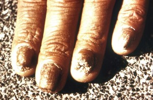 Tinea unguium, dermatophytosis involving nail bed