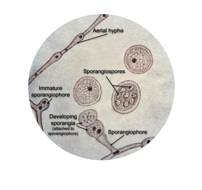 Ultrastructural details found in Blastomyces dermatitidis