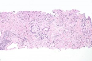 urothelial carcinoma